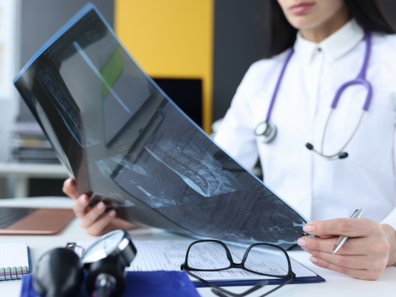 rheumatologist looking at spine x ray scans of patient