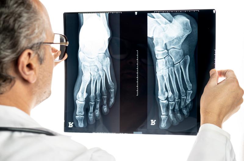 Podiatrist Examining X-ray of feet
