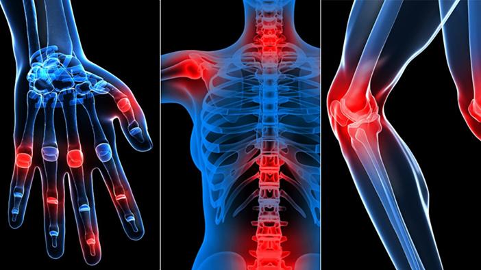 rheumatology x ray bones representation