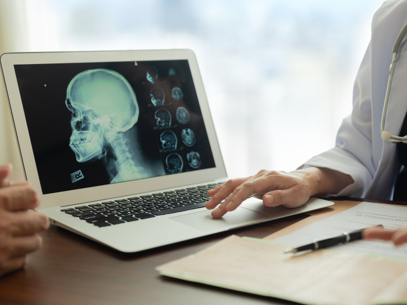laptop showing x ray of persons head